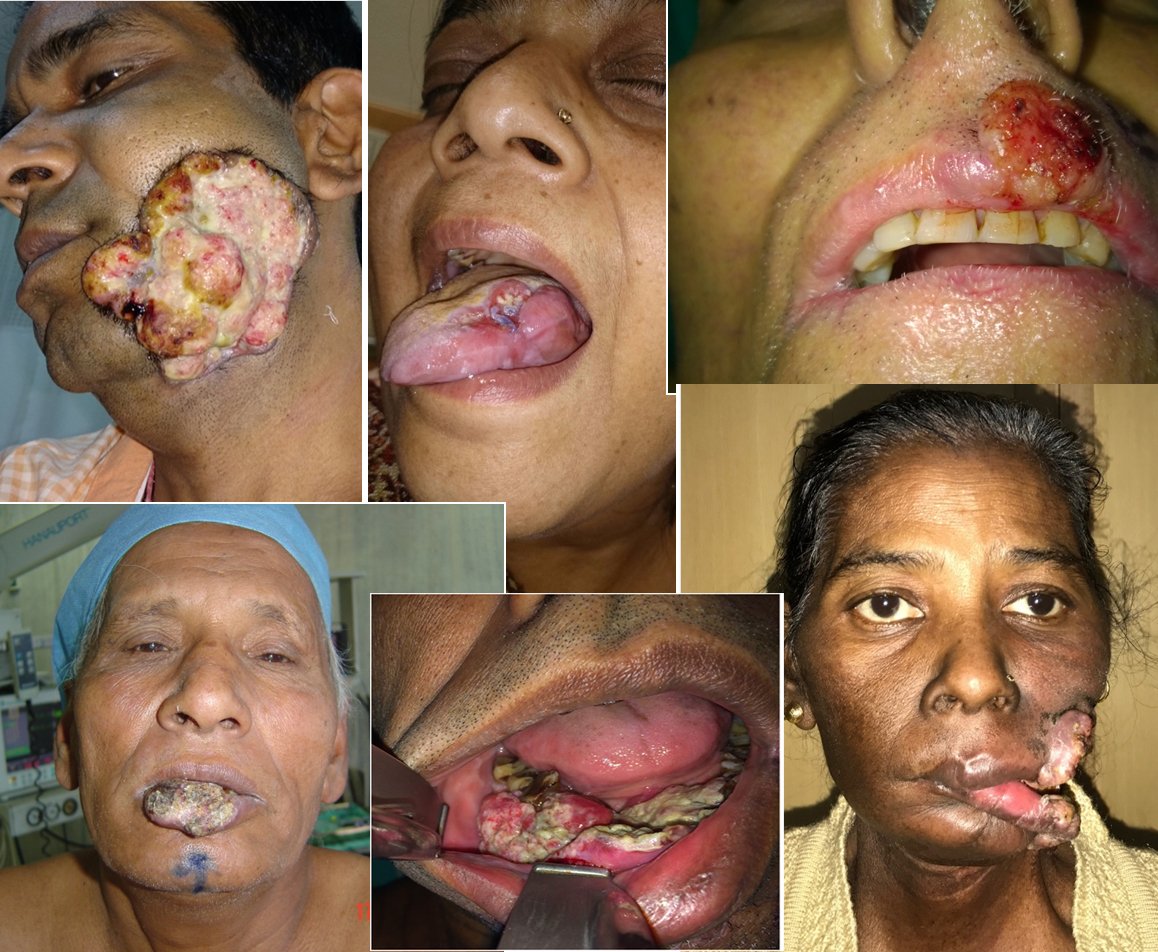 6th Most Common Cancer in World